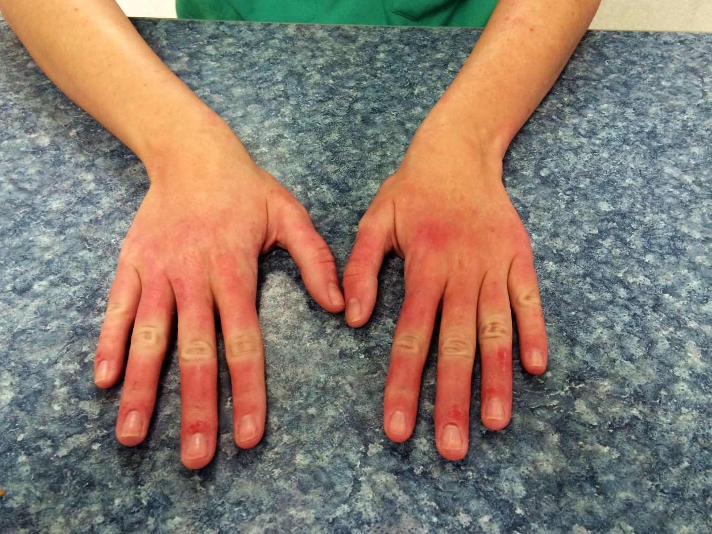 Red, swollen fingers. One year and no diagnosis. - Skin ...